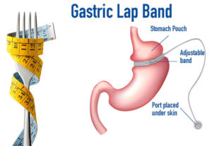 Gastric Lap Bend